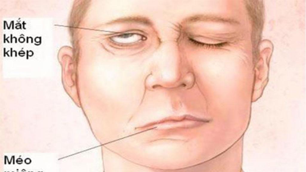 Cách massage bấm huyệt trị méo miệng
